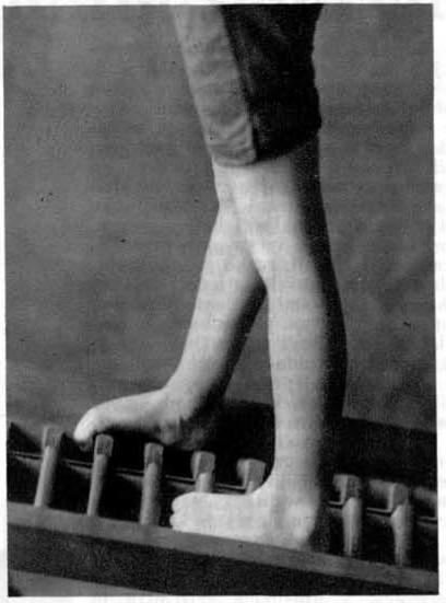 Vaje za utrditev in popravo stopala
