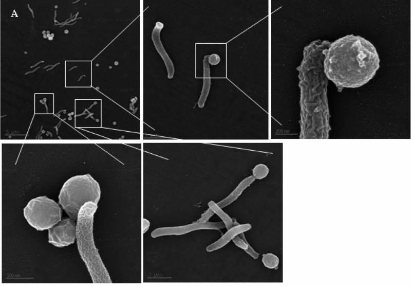 Vzajemne interakcije med bakterijo in arhejo. (foto: arhiv NS)