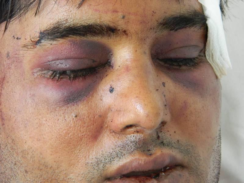 Sarfraz Malik kmalu po napadu (foto: Katja Lihtenvalner)